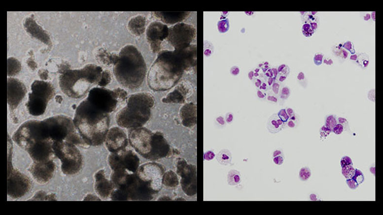 Stem Cell Researchers Use iPS Cells to Find Drugs For Rare Blood Disorder